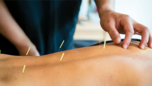 back-pain-acupuncture_1col.jpg
