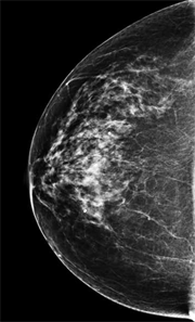 Slide13-digital-mammogram-most-common-density_180px.png