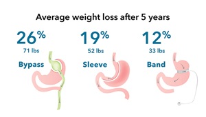 Bariatric-surgery-infographic_1col.jpg