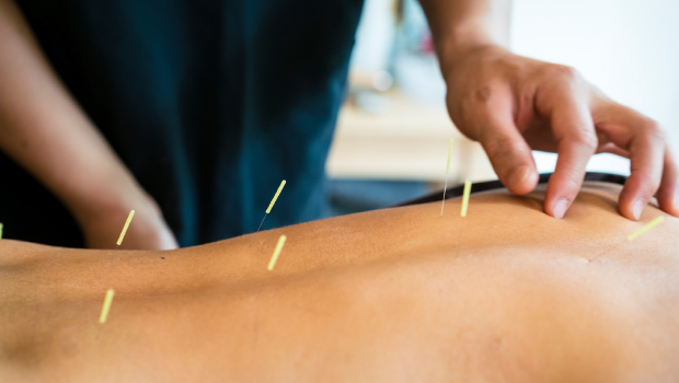 back-pain-acupuncture_2col.jpg